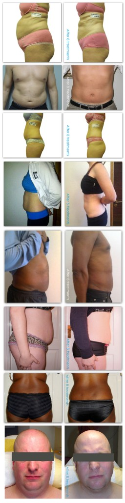 I-lipo laser treatment for weight loss before after - Alexandria, VA